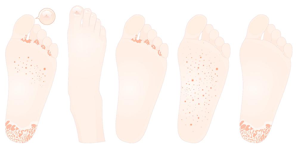 足が臭い病気の水虫