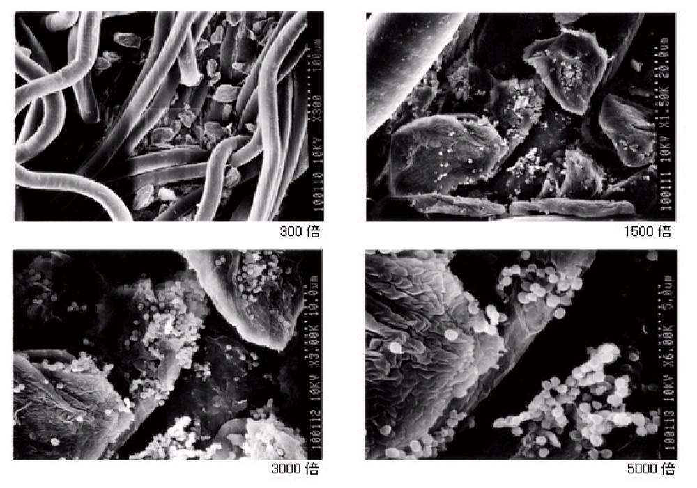 ブーツ 臭い 雑菌を顕微鏡で確認