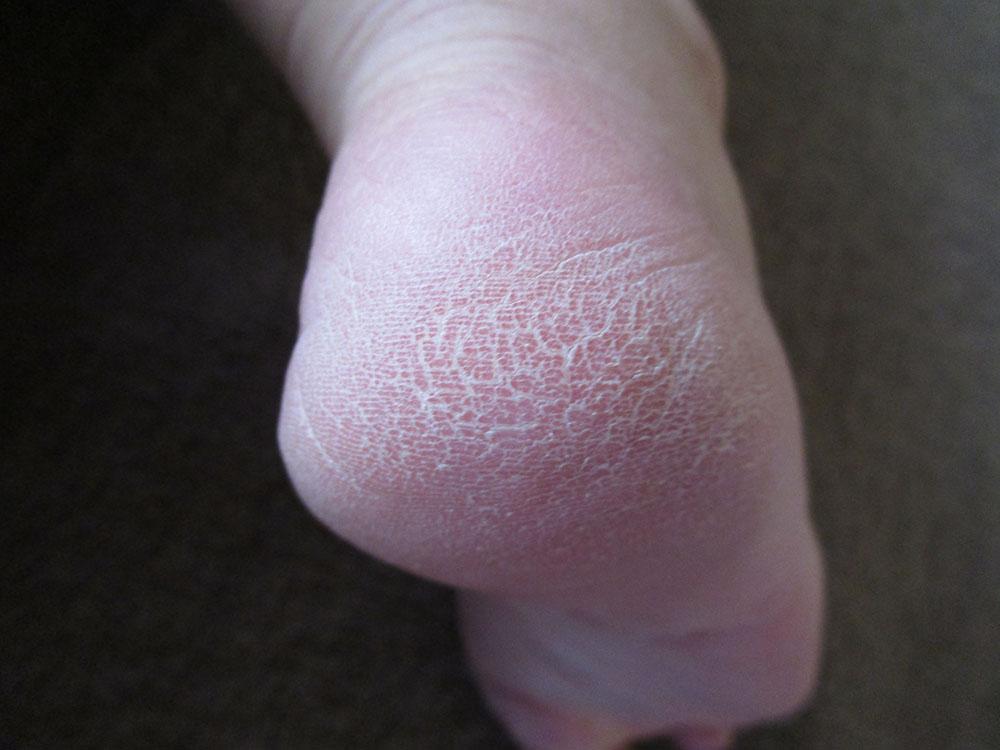 足 臭い 治療 角質